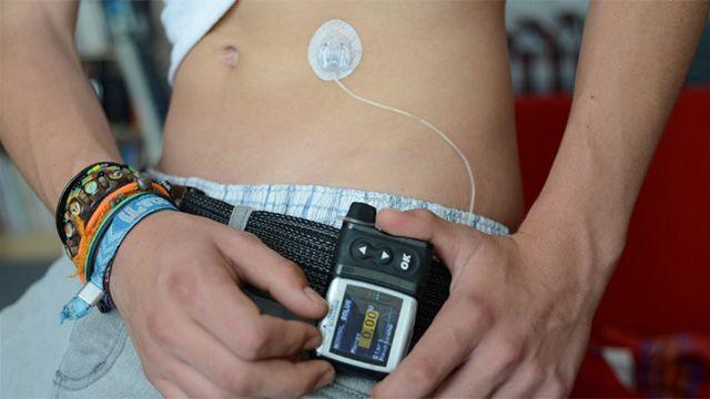 Gobierno financiará bomba de insulina para niños