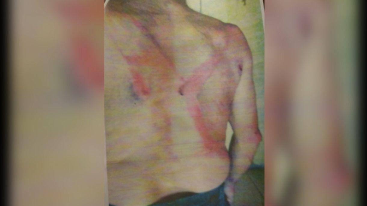 Peón rural denuncia a un capataz por brutal agresión con un rebenque