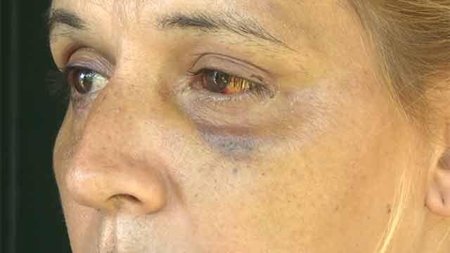 Proceso infraccional a menor que agredió a mujer trans adentro de un baño