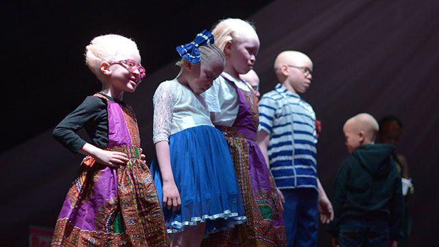 Concurso de belleza de albinos para luchar contra los prejuicios en Kenia