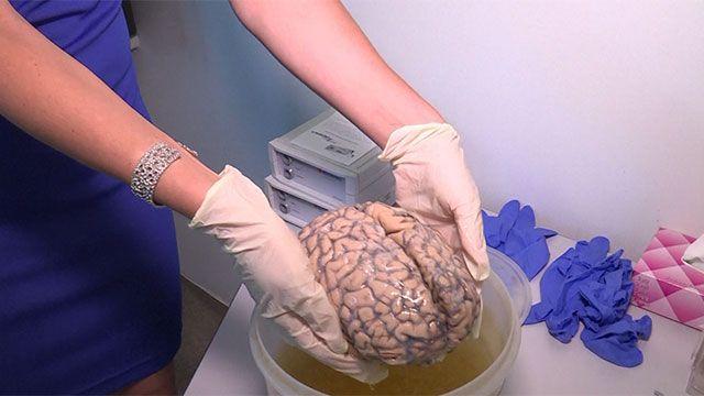 Británico creó la mayor colección de cerebros humanos del mundo