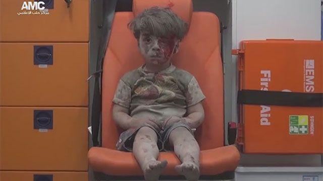 Murió el hermano del pequeño Omran por sus heridas durante ataque en Siria