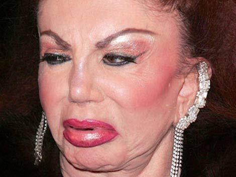 La madre de Stallone deformada por las cirugías estéticas