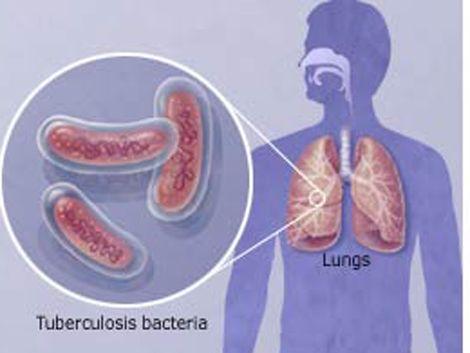 Alerta por foco de tuberculosis en una escuela de Punta de Rieles