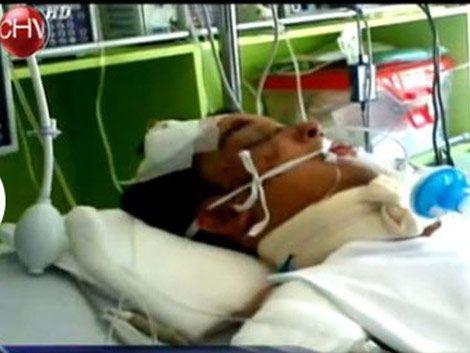 Joven homosexual chileno en coma tras agresión de neonazis