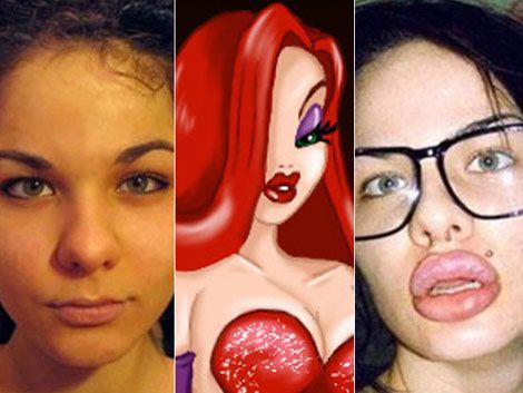 Se operó 100 veces los labios para parecerse a Jessica Rabbit