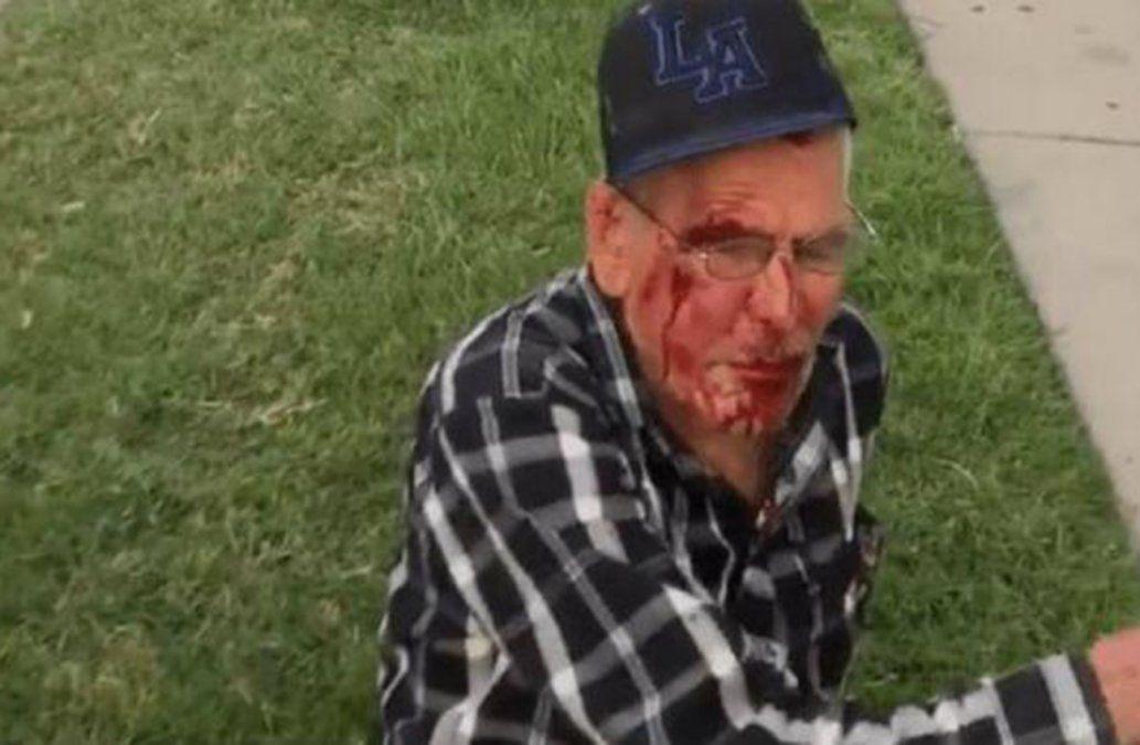 Golpeó a un anciano mexicano con un ladrillo gritándole que volviera a su país
