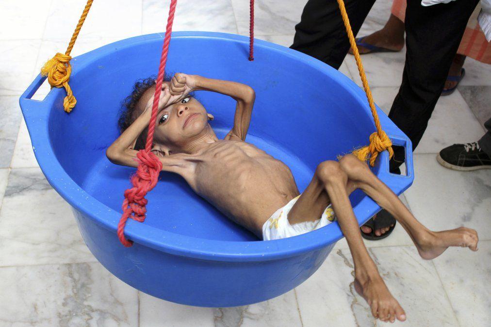 Un niño yemení que sufre desnutrición es pesado en un hospital en el norte del distrito de Abs