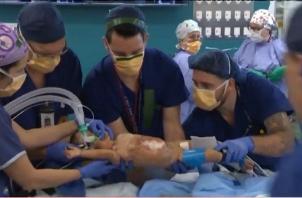 Separaron con éxito a dos siamesas de 15 meses tras seis horas de operación