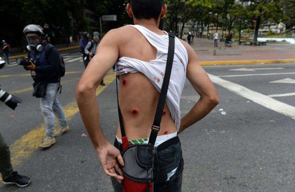 Nos acribillaron: El lamento de manifestantes heridos en Venezuela