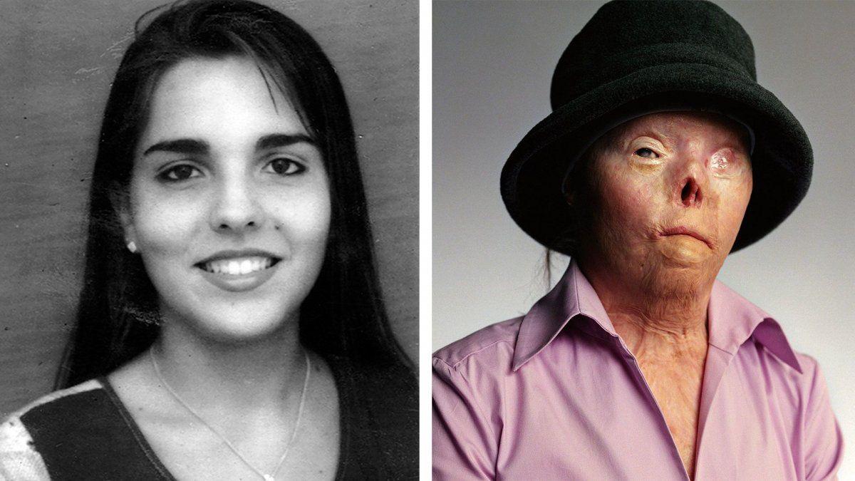 Saburido antes y después del accidente de 1999
