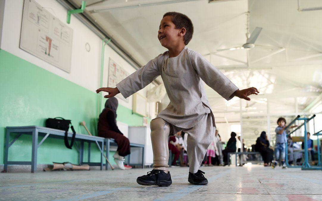 La alegría de un niño amputado que baila con su prótesis nueva conmueve al mundo