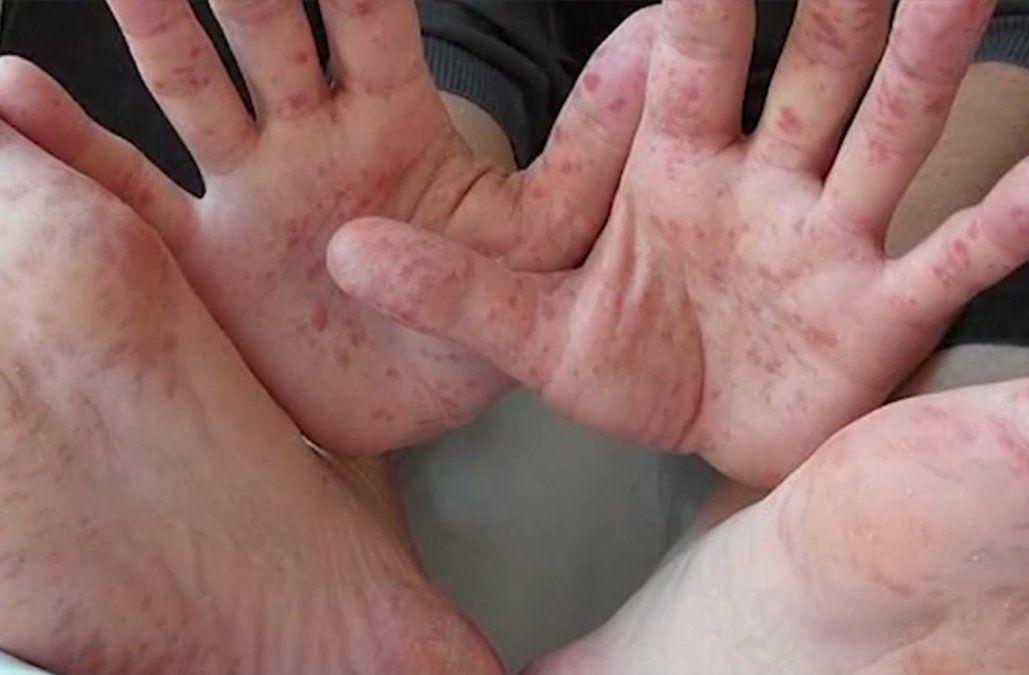 Decenas de niños que asisten a centros CAIF de Paysandú afectados por una enfermedad viral contagiosa