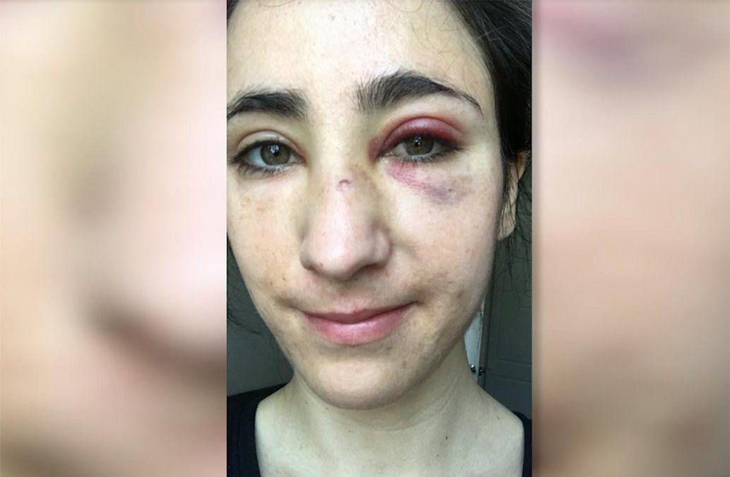 Uruguaya fue agredida en Londres mientras viajaba con su novia