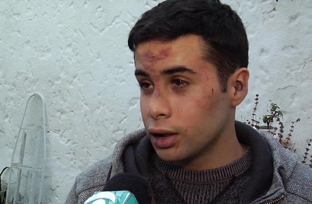 Joven de 21 años denunció haber sido agredido a golpes en un boliche del Prado