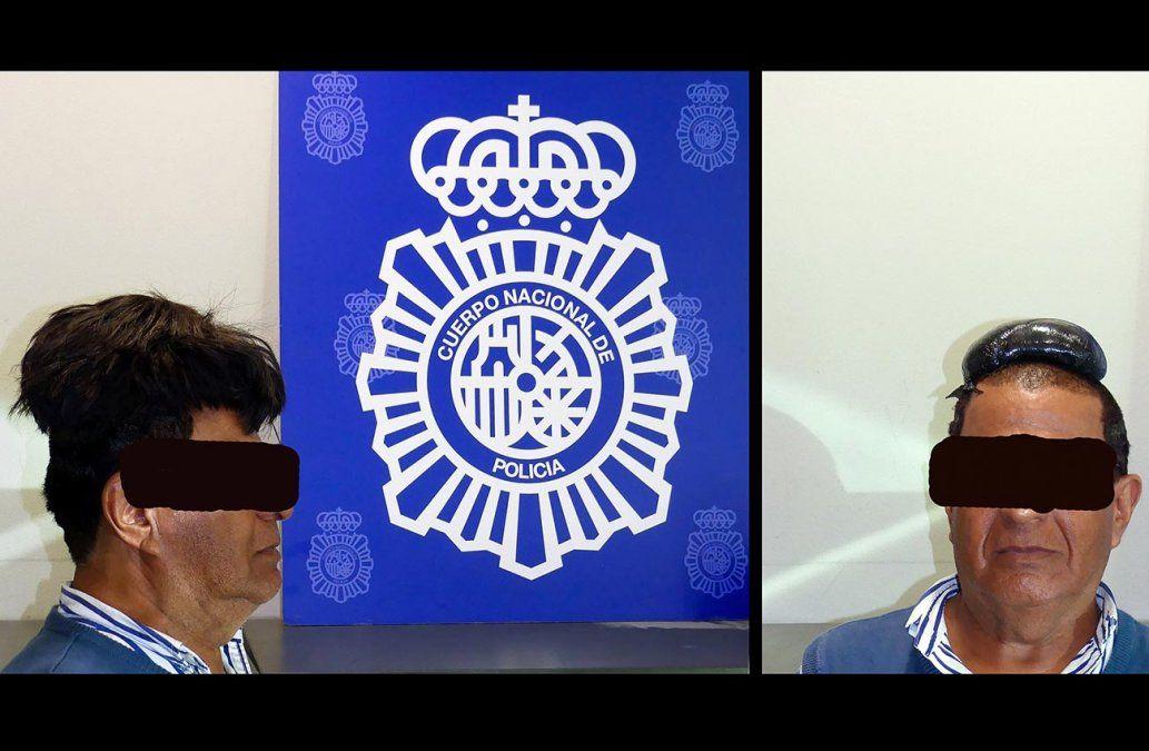Insólito: un colombiano fue detenido con medio kilo de cocaína oculta en su peluquín