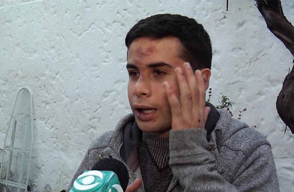 Fiscal pidió las cámaras para identificar a agresores de un joven en boliche del Prado