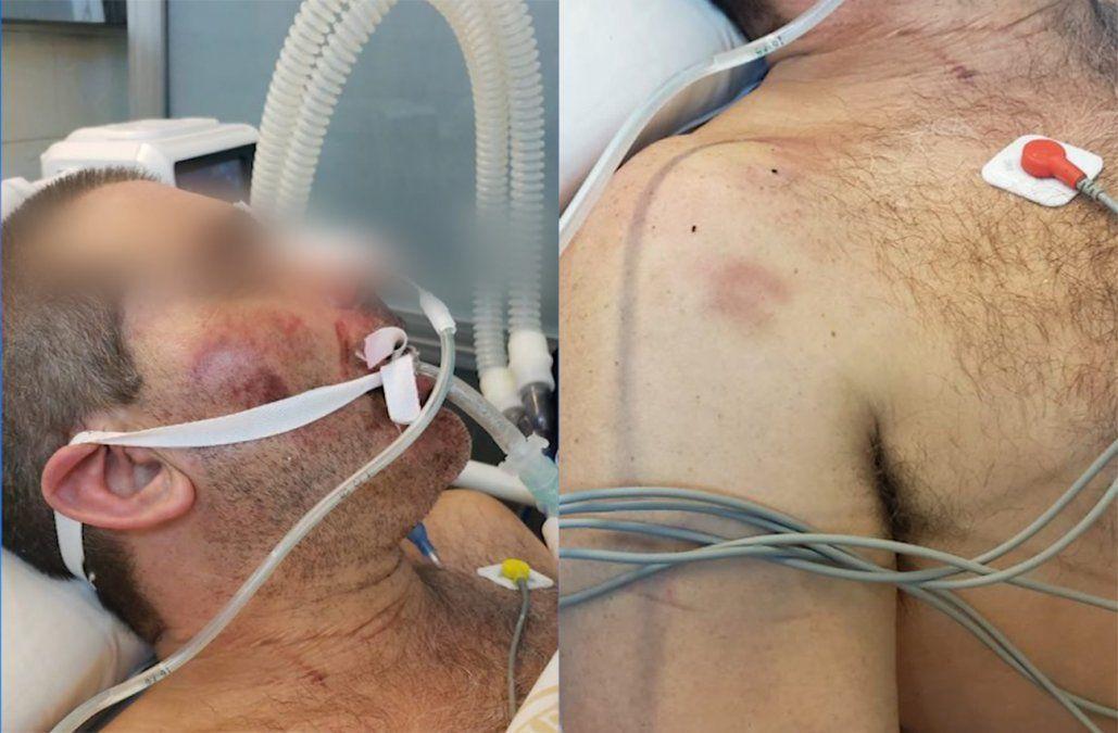 Familiares denuncian que un hombre está en CTI tras ser golpeado por policías