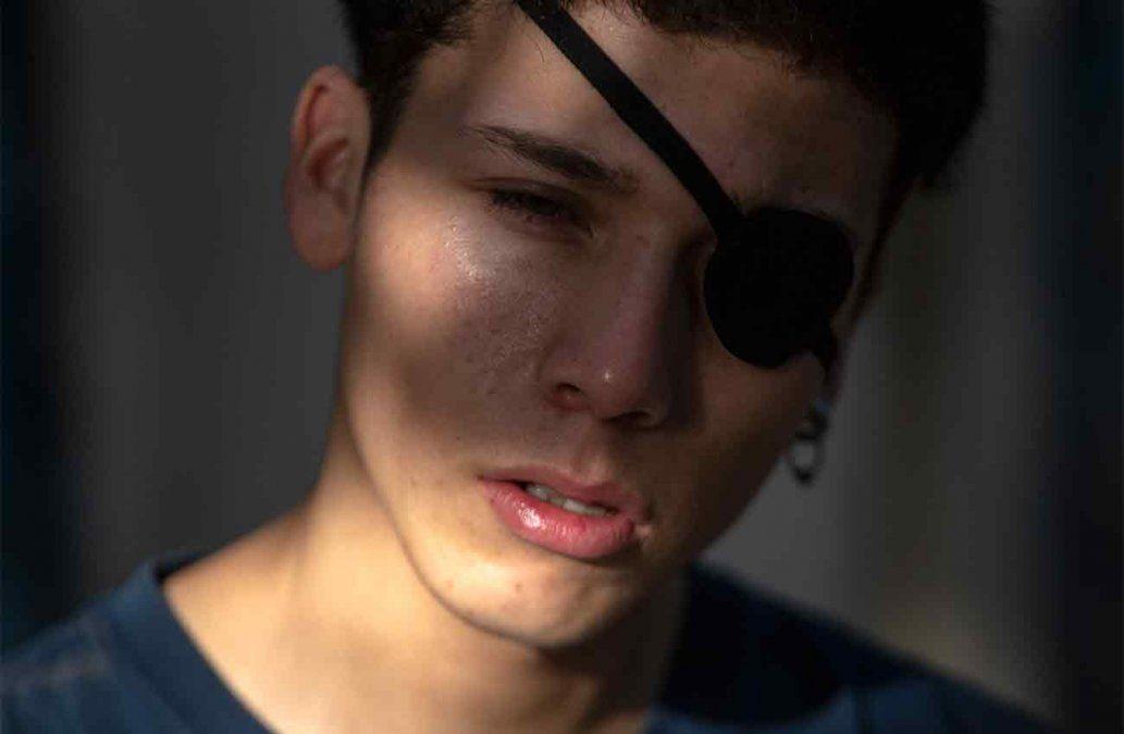 Lesiones oculares y ceguera, las marcas de las protestas en Chile