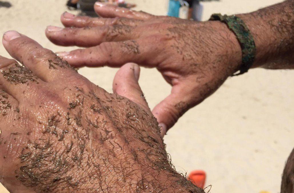 Varias playas con bandera sanitaria por un fenómeno que deja la piel gomosa
