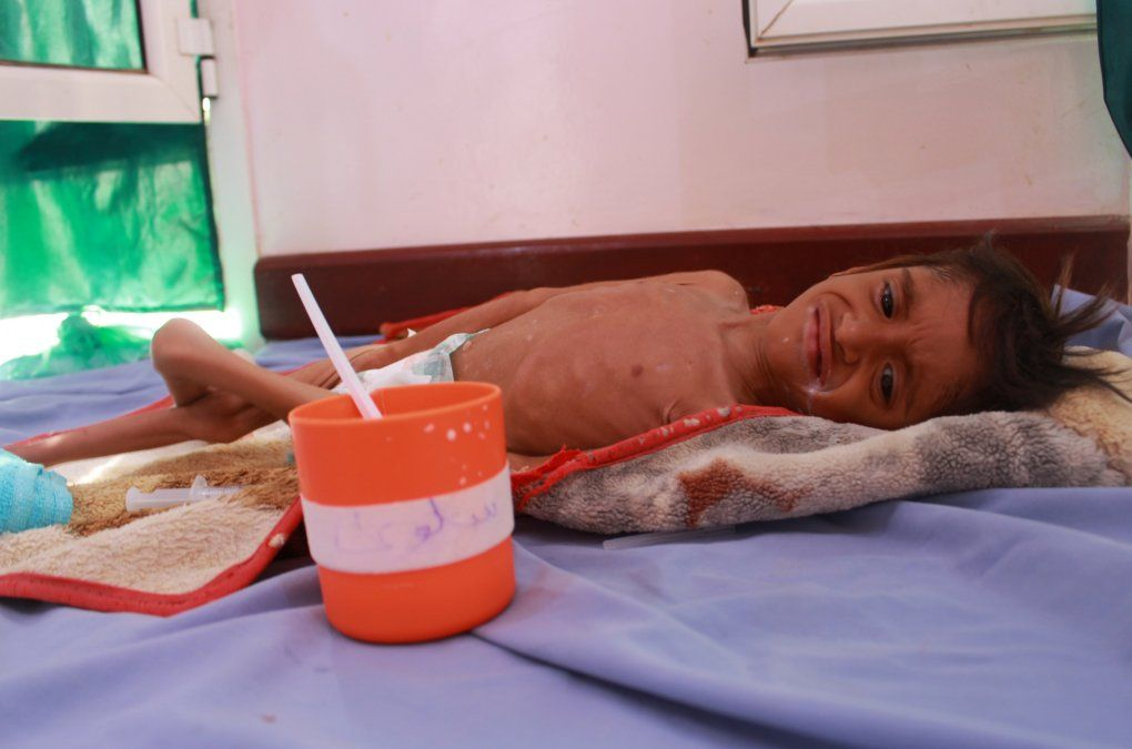 Un niño yemení que sufre desnutrición fotografiado en julio de 2020. La guerra en este país ha provocado una crisis humanitaria con el cólera y la violencia como telón de fondo