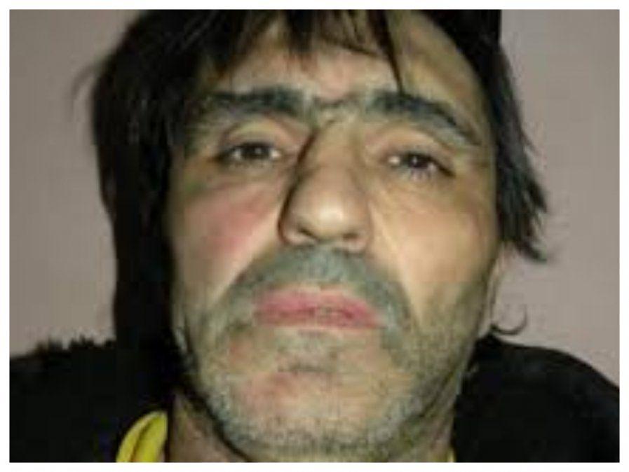 Pérez quedó parapléjico tras un atentado en 2007