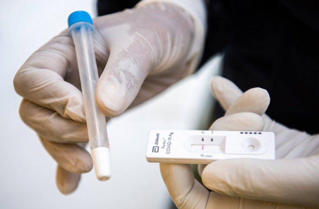 MSP recomienda los test de antígenos como primera opción para detectar casos de Covid