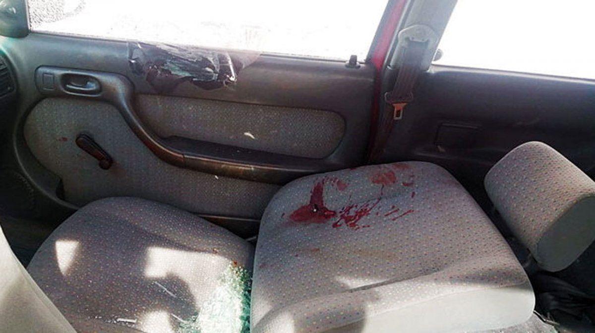 Un policía terminó internado en CTI con graves heridas en el rostro