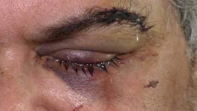 Hombre perdió un ojo tras recibir golpiza de hinchas de Nacional