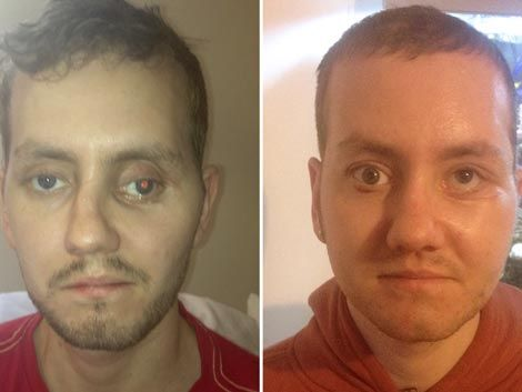 Reconstruyen rostro de un hombre con piezas de una impresora 3D