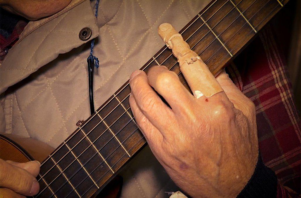Pether recibió un dedo mecánico que le permitió volver a tocar la guitarra